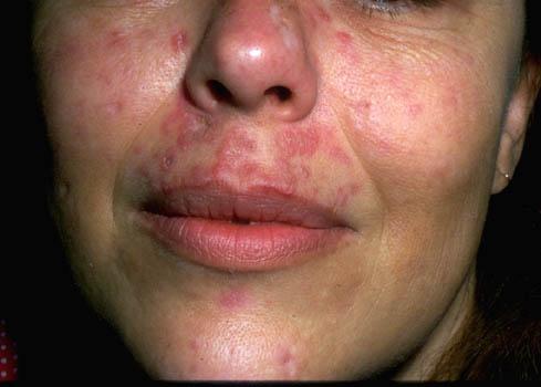 lupus-erythematosus