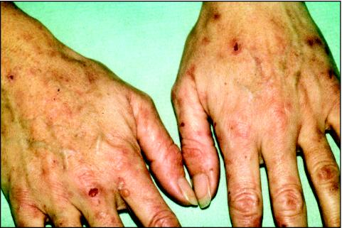 http://top-10-list.org/wp-content/uploads/2009/08/Cutaneous-Porphyria.jpg