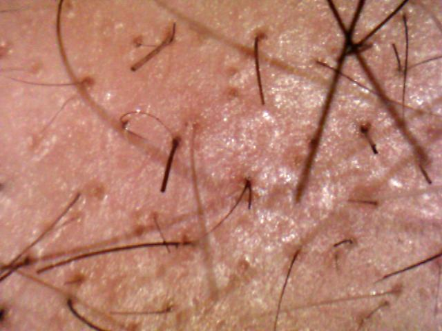 all the hair in our body including our pubic hair follows a natural