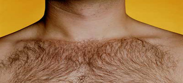 Excess-body-hair
