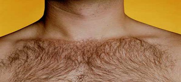 Excess-body-hair