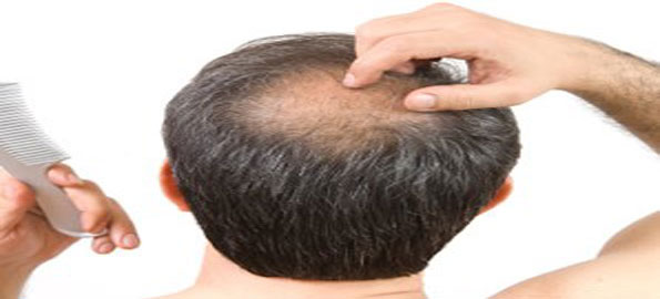 Ignoring-thinning-hair