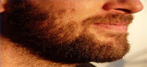 Too-much-facial-hair
