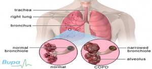 Chronic-Obstructive-Pulmonary-Disease-30