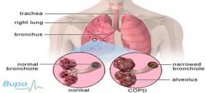 Chronic-Obstructive-Pulmonary-Disease-30