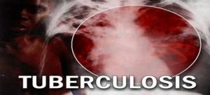 Tuberculosis-300x136.jpg