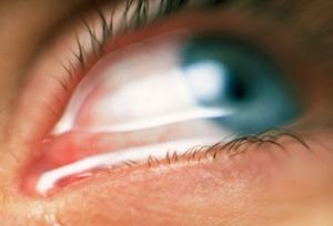 Как лечить слезоточивость глаз в домашних условиях